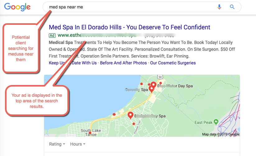 Google Search Paid Ads for Med spas advertising